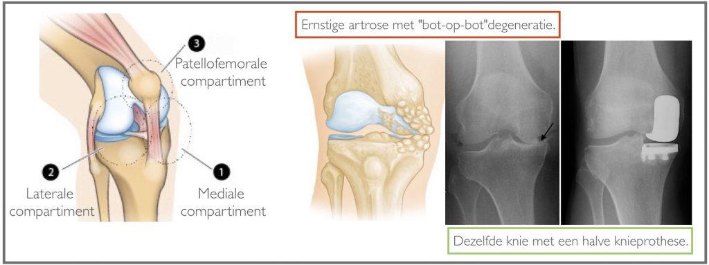 Knie met ernstige artrose en halve knieprothese